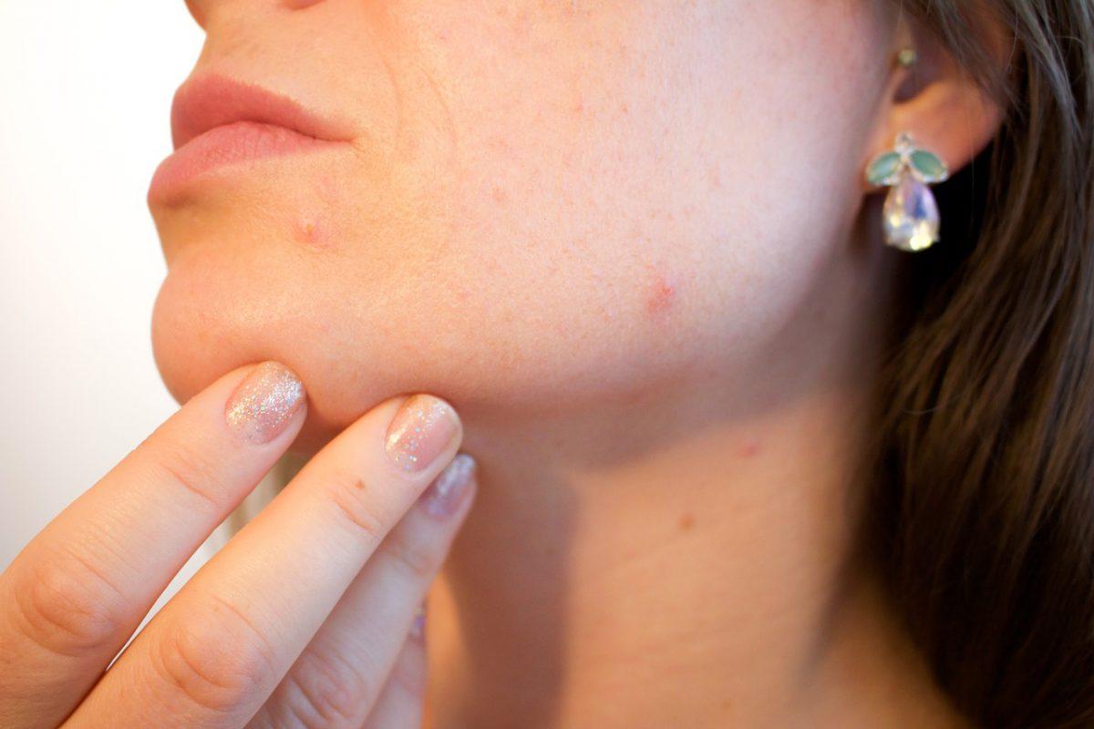 Bőrproblémák kezelése - A kozmetikus tanácsai
